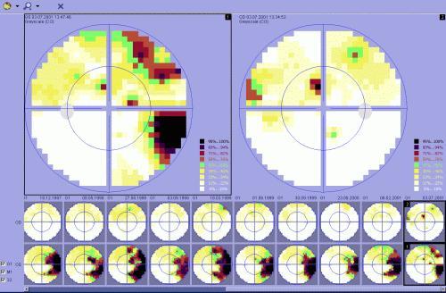 7c311ea497 Ο περιορισμός των οπτικών πεδίων μας είναι πολύ δύσκολο να εκτιμηθεί από  τον ίδιο τον πάσχοντα. Ο έλεγχος της περιφερικής όρασης με αδρό τρόπο όπως  κινώντας ...